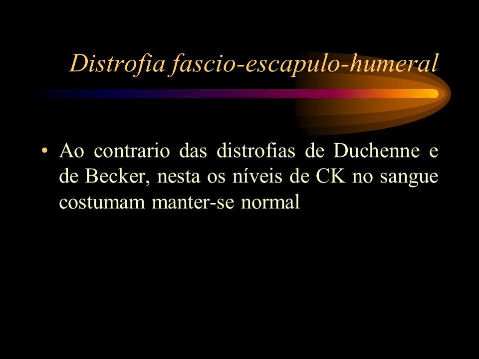 Distrofia fascio-escapulo-humeral Ao contrario das distrofias de Duchenne e de Becker, nesta os níveis de CK no sangue costumam manter-se normal