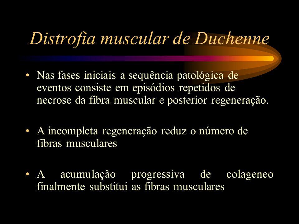 Distrofia muscular de Duchenne Nas fases iniciais a sequência patológica de eventos consiste em episódios repetidos de necrose da fibra muscular e pos