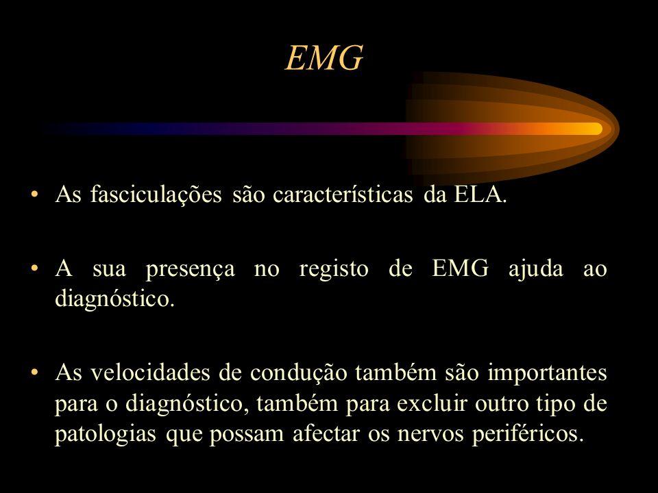 EMG As fasciculações são características da ELA. A sua presença no registo de EMG ajuda ao diagnóstico. As velocidades de condução também são importan