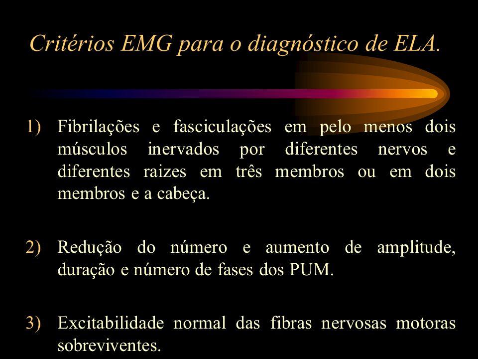 Critérios EMG para o diagnóstico de ELA. 1)Fibrilações e fasciculações em pelo menos dois músculos inervados por diferentes nervos e diferentes raizes