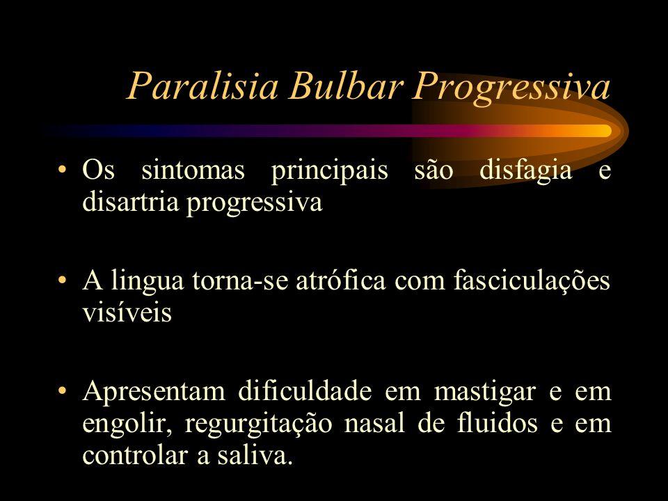 Paralisia Bulbar Progressiva Os sintomas principais são disfagia e disartria progressiva A lingua torna-se atrófica com fasciculações visíveis Apresen