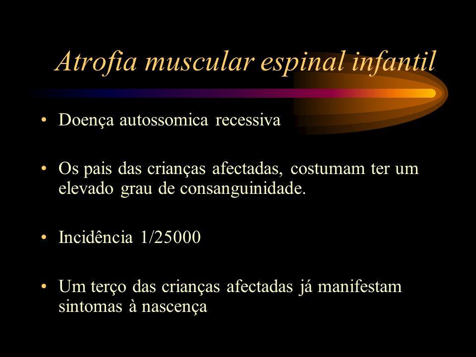 Atrofia muscular espinal infantil Doença autossomica recessiva Os pais das crianças afectadas, costumam ter um elevado grau de consanguinidade. Incidê