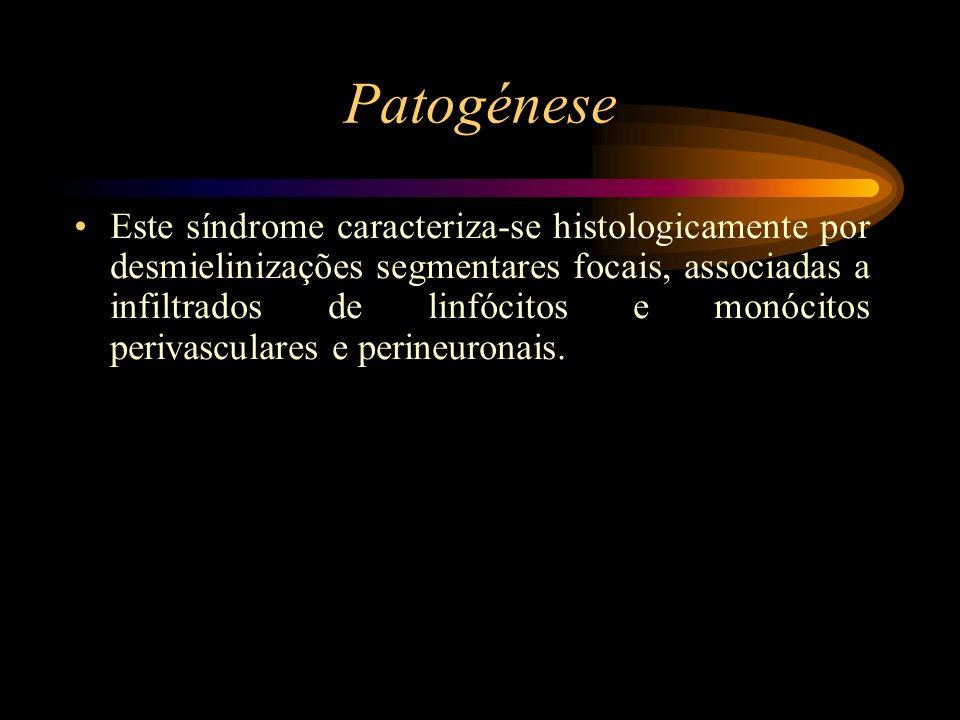 Patogénese Este síndrome caracteriza-se histologicamente por desmielinizações segmentares focais, associadas a infiltrados de linfócitos e monócitos p