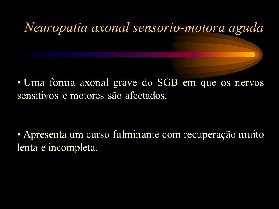 Neuropatia axonal sensorio-motora aguda Uma forma axonal grave do SGB em que os nervos sensitivos e motores são afectados. Apresenta um curso fulminan