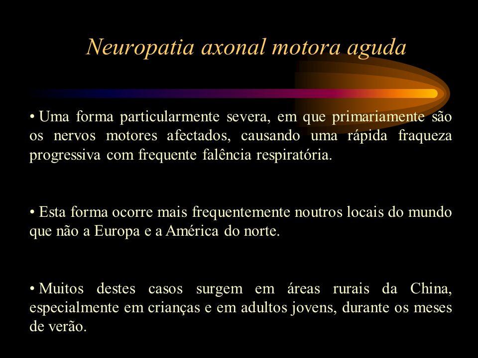 Neuropatia axonal motora aguda Uma forma particularmente severa, em que primariamente são os nervos motores afectados, causando uma rápida fraqueza pr