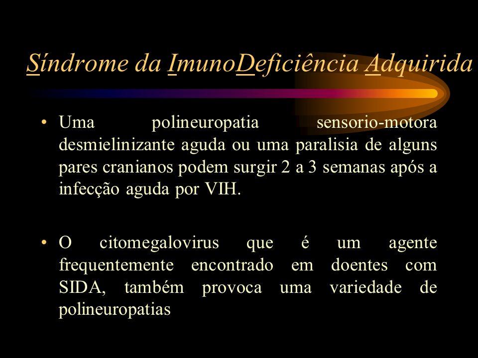 Síndrome da ImunoDeficiência Adquirida Uma polineuropatia sensorio-motora desmielinizante aguda ou uma paralisia de alguns pares cranianos podem surgi