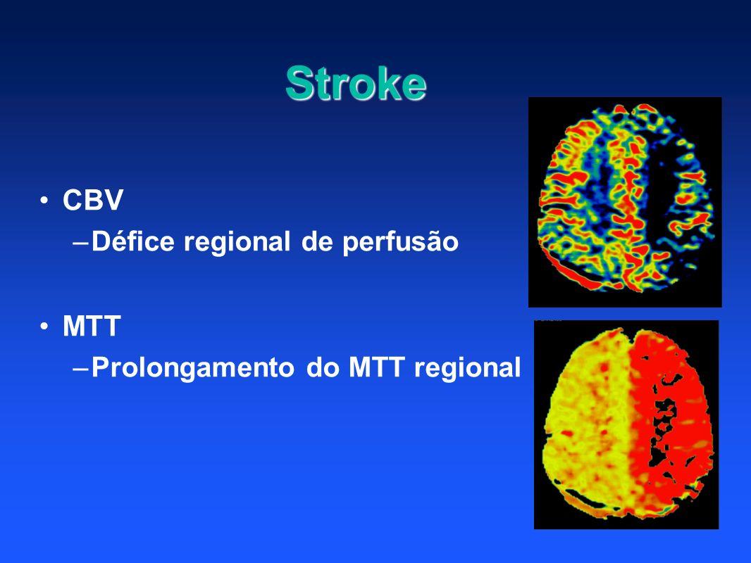 CBV –Défice regional de perfusão MTT –Prolongamento do MTT regional Stroke
