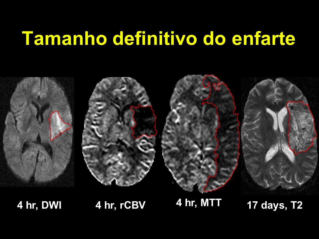 Tamanho definitivo do enfarte 4 hr, DWI4 hr, rCBV4 hr, rCBF17 days, T2 4 hr, MTT
