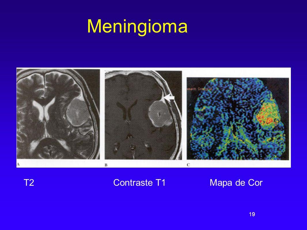 19 Meningioma T2 Contraste T1 Mapa de Cor