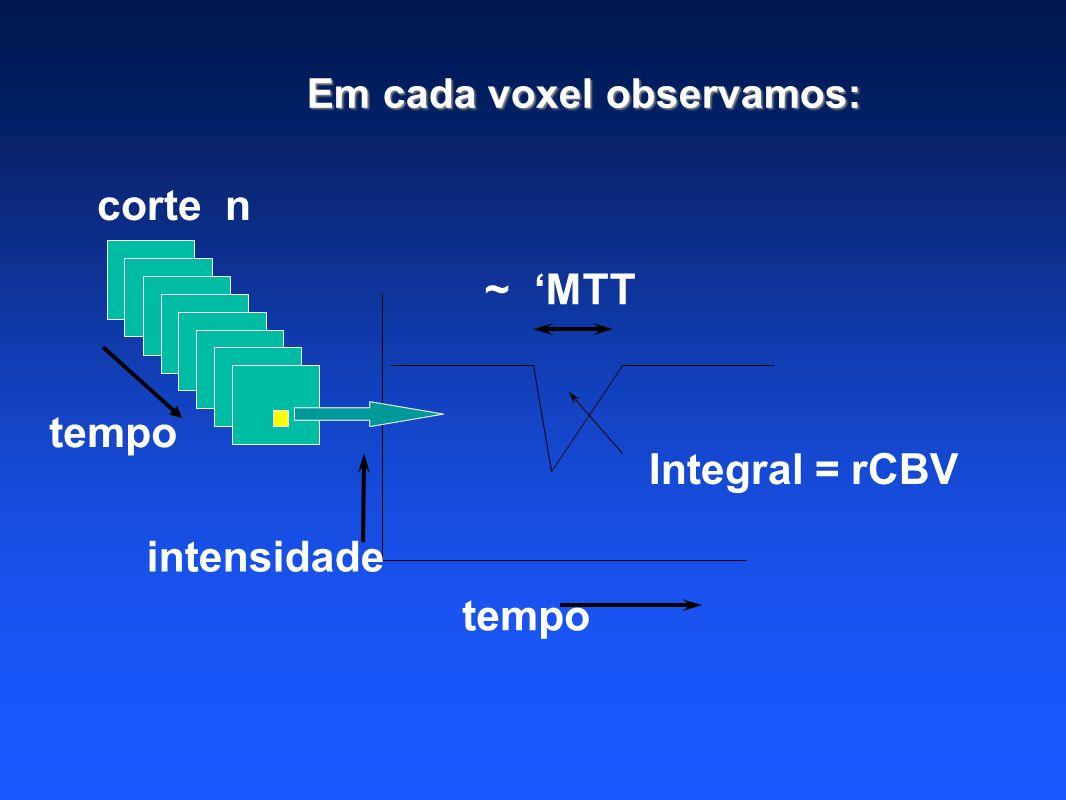 corte n tempo intensidade ~ MTT Integral = rCBV Em cada voxel observamos: tempo