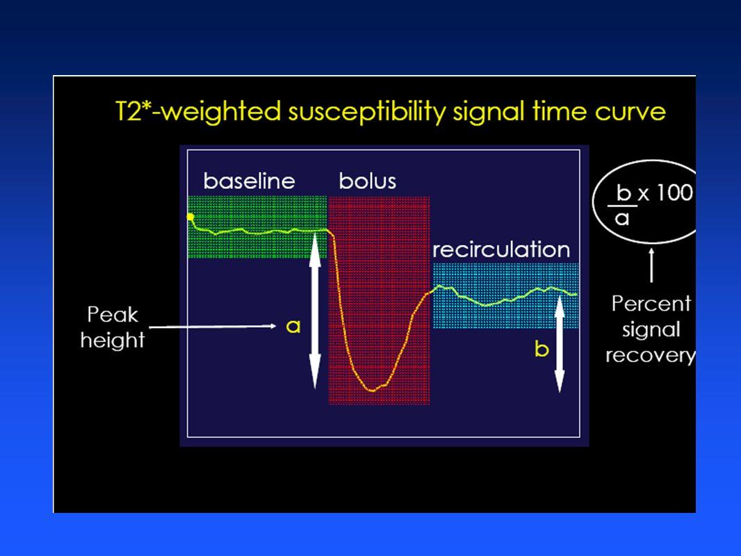Curvas tempo- intensidadeManipulaçãoMatemática Mapas Funcionais + = - + x / Qualitative rCBV map Primeirapassagem Mean Time to Enhance Map MTE NEI Aquisição Dinâmica e Alteração da Susceptibilidade
