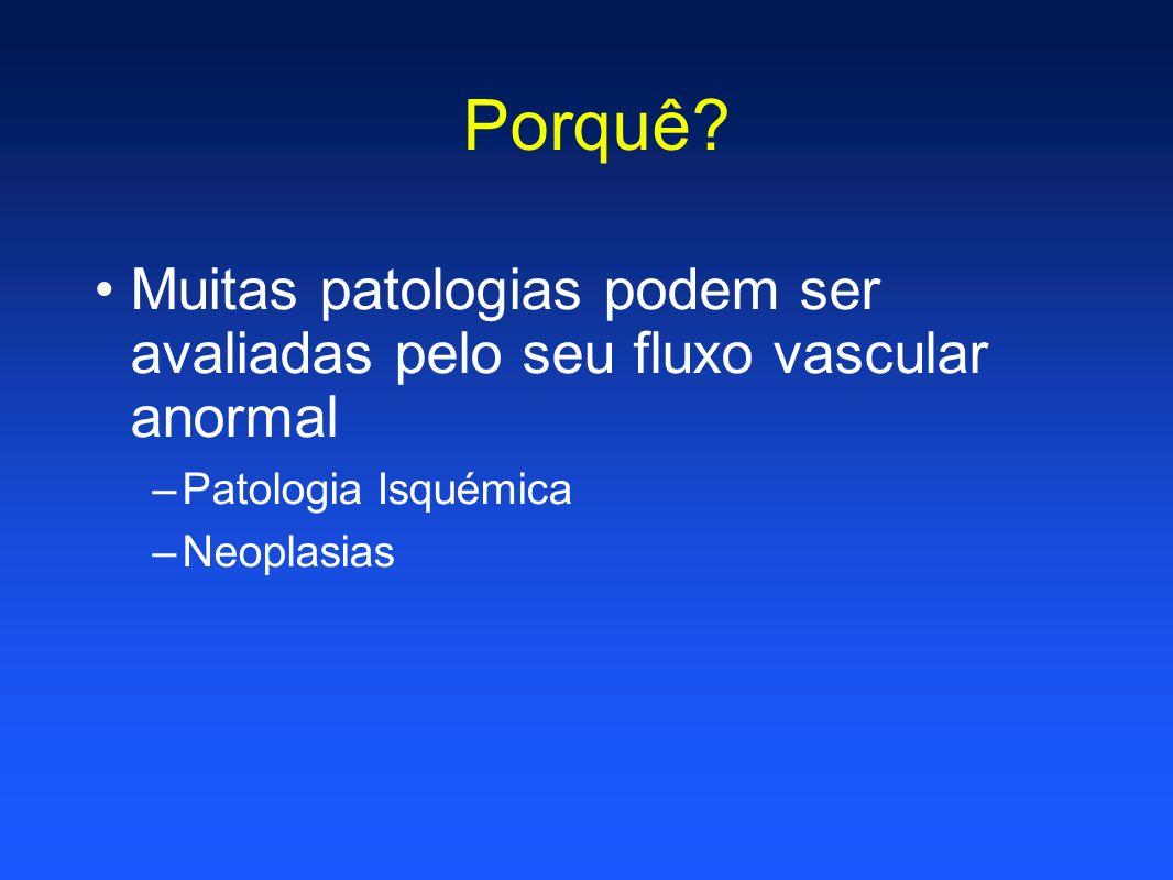 Porquê? Muitas patologias podem ser avaliadas pelo seu fluxo vascular anormal –Patologia Isquémica –Neoplasias