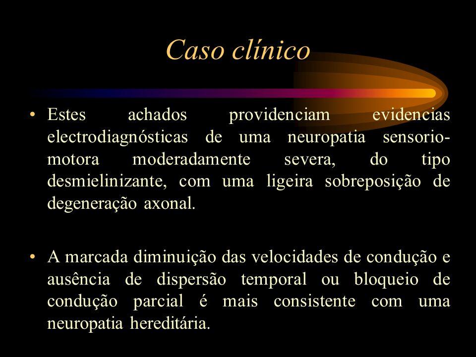 Caso clínico O exemplo clássico de uma neuropatia caracterizada por uma mielinopatia periférica uniforme é a neuropatia sensorio-motora hereditária tipo I (Doença Charcot-Marrie-Tooth tipo I).