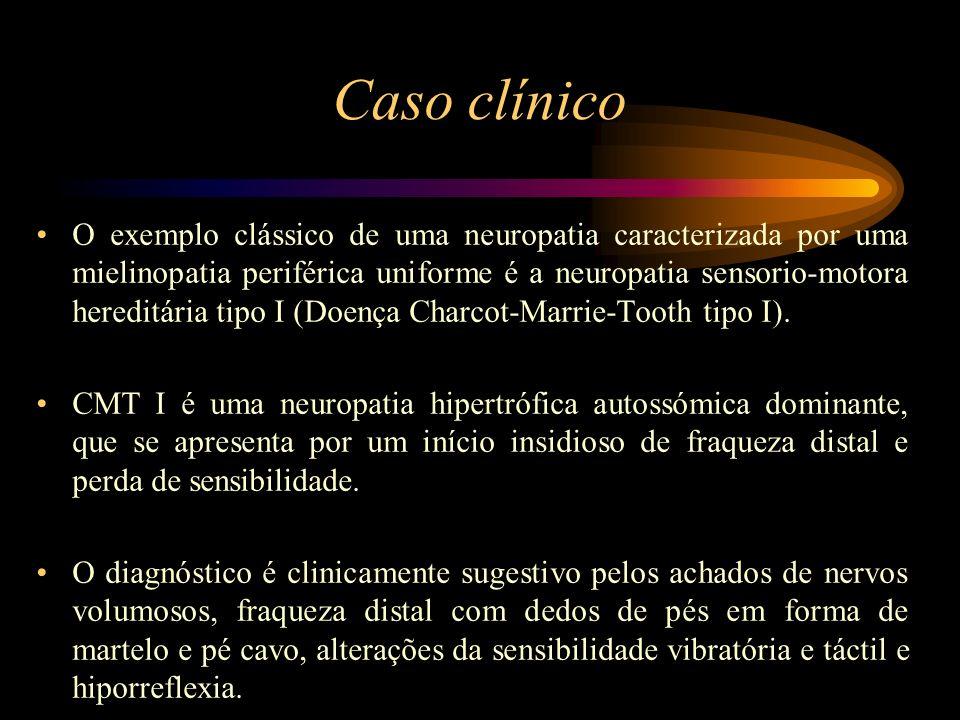 Caso clínico O exemplo clássico de uma neuropatia caracterizada por uma mielinopatia periférica uniforme é a neuropatia sensorio-motora hereditária ti