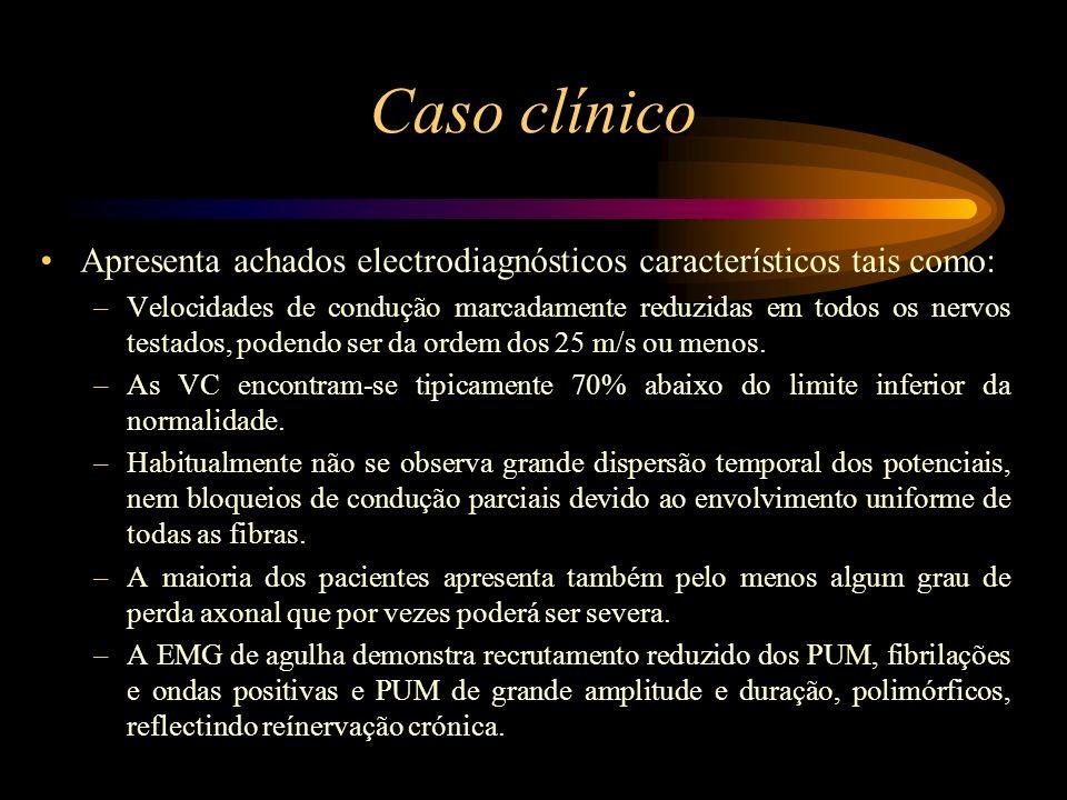 Caso clínico Apresenta achados electrodiagnósticos característicos tais como: –Velocidades de condução marcadamente reduzidas em todos os nervos testa