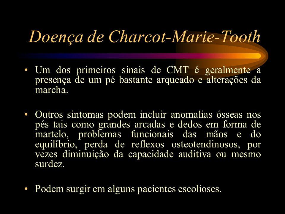 Doença de Charcot-Marie-Tooth Um dos primeiros sinais de CMT é geralmente a presença de um pé bastante arqueado e alterações da marcha. Outros sintoma