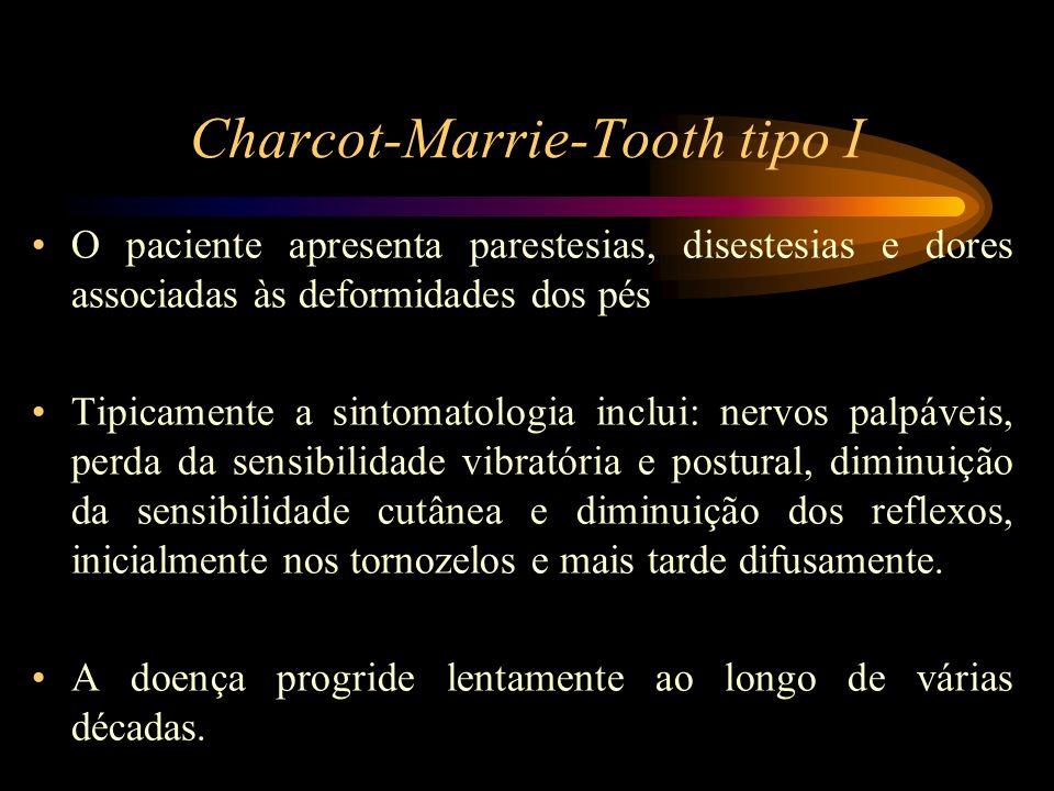 Charcot-Marrie-Tooth tipo I O paciente apresenta parestesias, disestesias e dores associadas às deformidades dos pés Tipicamente a sintomatologia incl