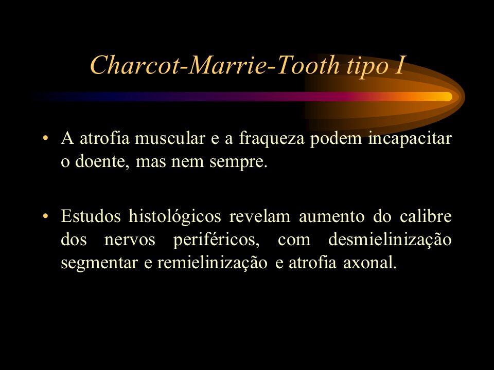 Charcot-Marrie-Tooth tipo I A atrofia muscular e a fraqueza podem incapacitar o doente, mas nem sempre. Estudos histológicos revelam aumento do calibr