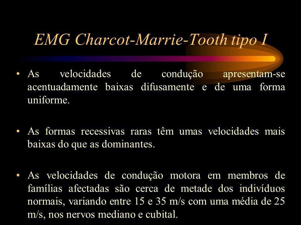 EMG Charcot-Marrie-Tooth tipo I Os potenciais de acção nervosos sensitivos compostos estão habitualmente ausentes ou dispersos e de baixa amplitude, e com velocidades de condução severamente reduzidas.