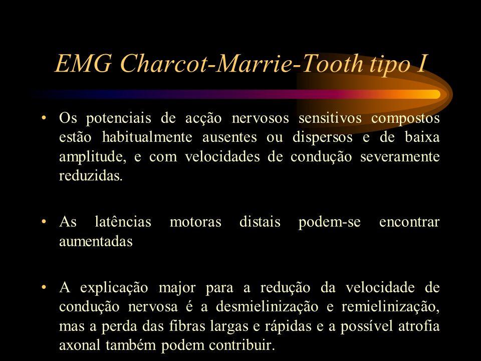 EMG Charcot-Marrie-Tooth tipo I Os potenciais de acção nervosos sensitivos compostos estão habitualmente ausentes ou dispersos e de baixa amplitude, e