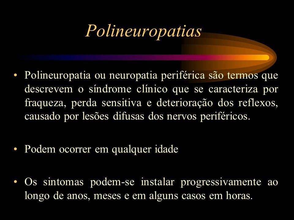 Polineuropatias Polineuropatia ou neuropatia periférica são termos que descrevem o síndrome clínico que se caracteriza por fraqueza, perda sensitiva e