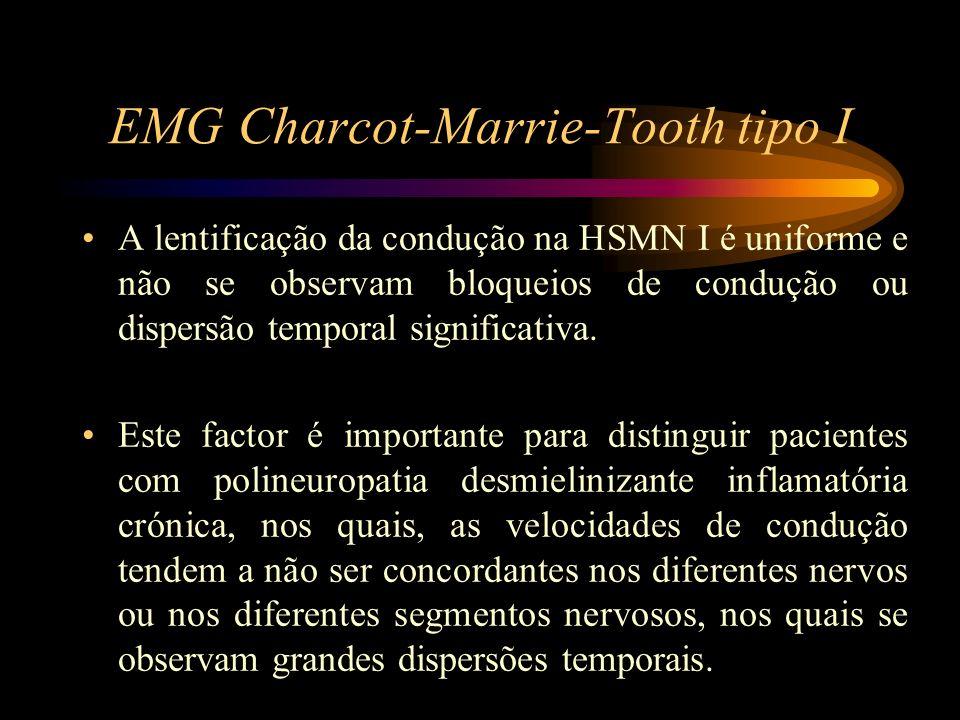 EMG Charcot-Marrie-Tooth tipo I A lentificação da condução na HSMN I é uniforme e não se observam bloqueios de condução ou dispersão temporal signific