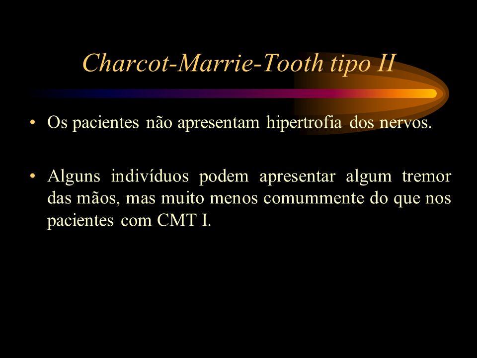 Charcot-Marrie-Tooth tipo II Os pacientes não apresentam hipertrofia dos nervos. Alguns indivíduos podem apresentar algum tremor das mãos, mas muito m