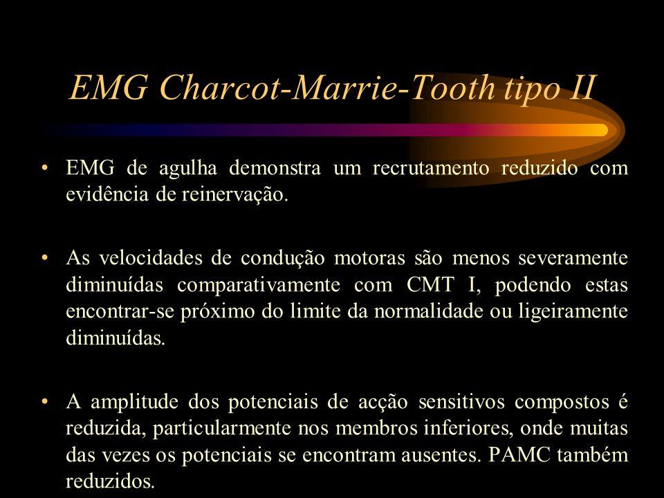 EMG Charcot-Marrie-Tooth tipo II EMG de agulha demonstra um recrutamento reduzido com evidência de reinervação. As velocidades de condução motoras são