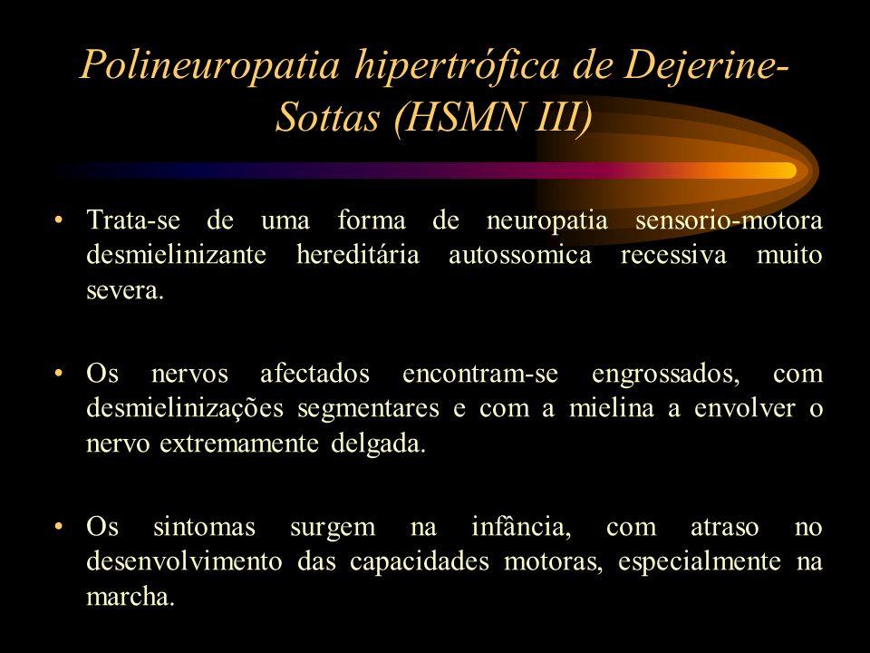 Polineuropatia hipertrófica de Dejerine- Sottas (HSMN III) Os achados clínicos incluem: pés cavos, cãimbras, incoordenação, escolioses, fraqueza, perda de sensibilidade e paralisias dos nervos abducente e facial.
