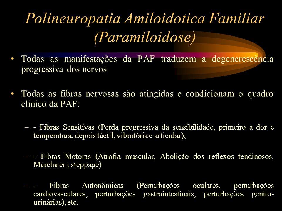 Polineuropatia Amiloidotica Familiar (Paramiloidose) No estadio final, o doente encontra-se acamado ou numa cadeira de rodas, apresentando de uma forma geral, fraqueza muscular, atrofias, e caminhando inexoravelmente para a morte por caquexia e/ou infecções intercorrentes.