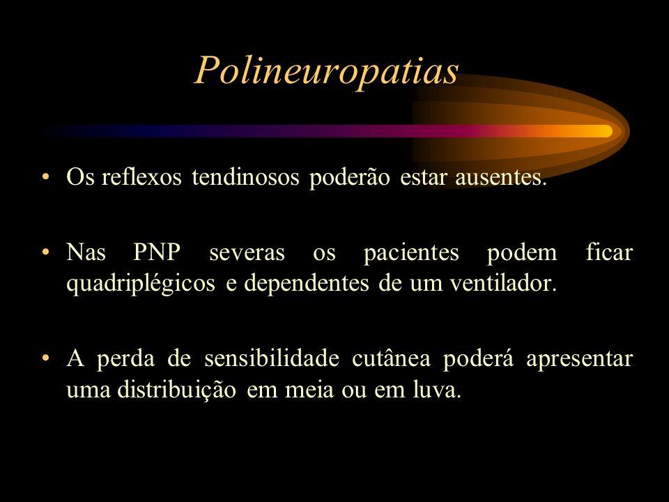 Polineuropatias Os reflexos tendinosos poderão estar ausentes. Nas PNP severas os pacientes podem ficar quadriplégicos e dependentes de um ventilador.