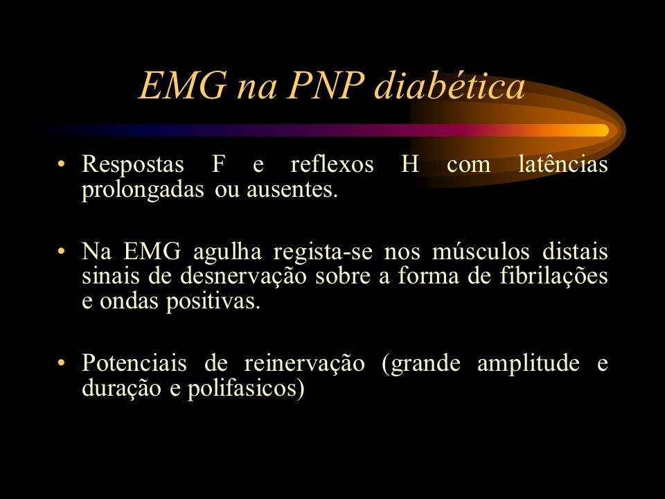 EMG na PNP diabética Respostas F e reflexos H com latências prolongadas ou ausentes. Na EMG agulha regista-se nos músculos distais sinais de desnervaç