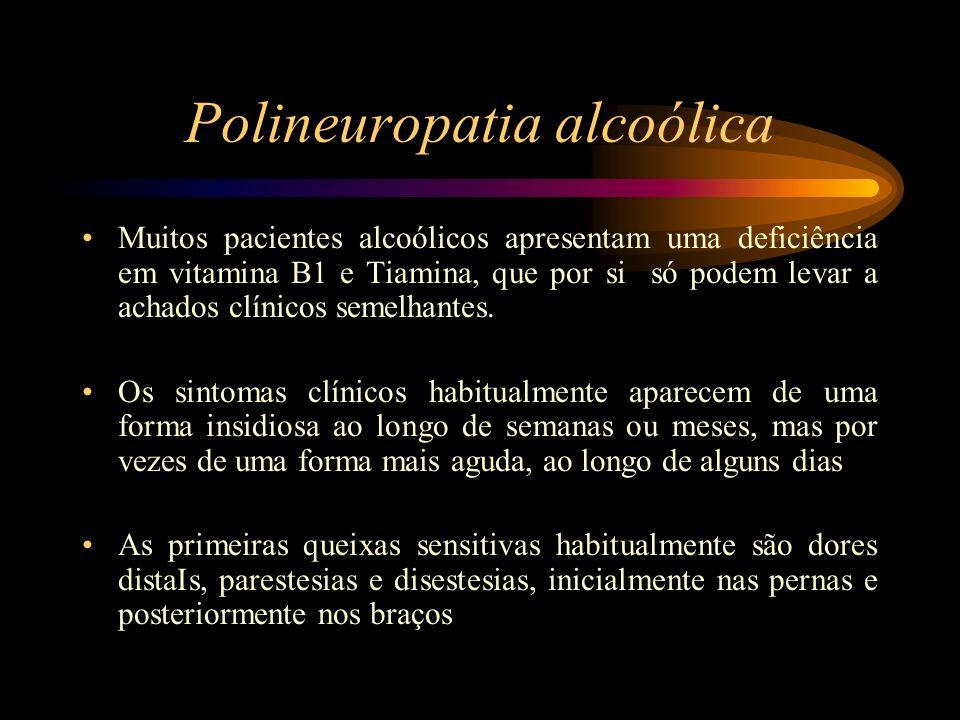 Polineuropatia alcoólica Muitos pacientes alcoólicos apresentam uma deficiência em vitamina B1 e Tiamina, que por si só podem levar a achados clínicos