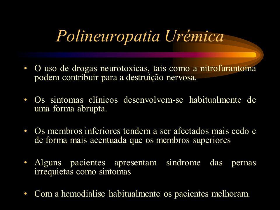 Polineuropatia Urémica O uso de drogas neurotoxicas, tais como a nitrofurantoina podem contribuir para a destruição nervosa. Os sintomas clínicos dese