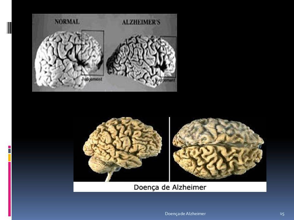 15 Doença de Alzheimer
