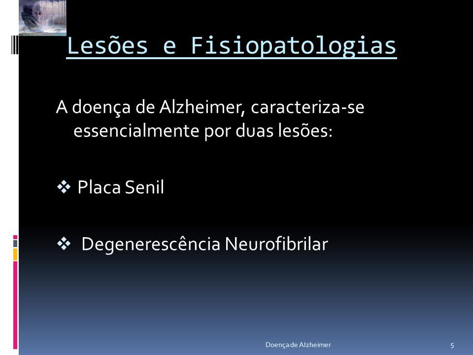 Lesões e Fisiopatologias A doença de Alzheimer, caracteriza-se essencialmente por duas lesões: Placa Senil Degenerescência Neurofibrilar 5 Doença de A