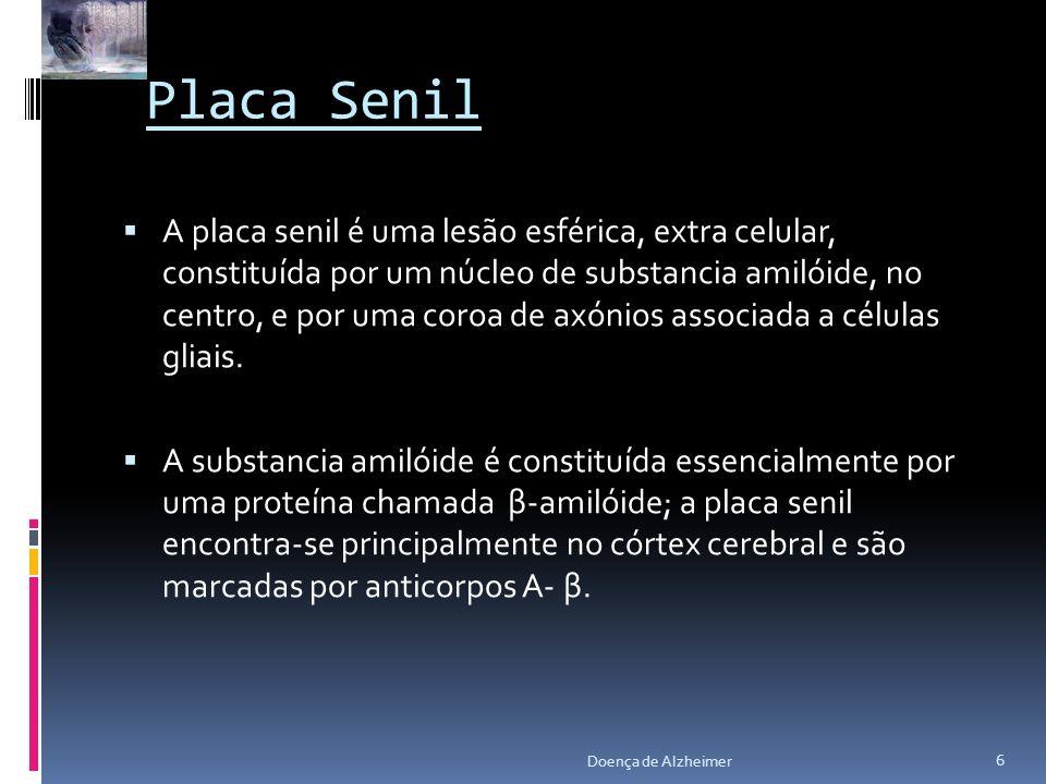 Placa Senil A placa senil é uma lesão esférica, extra celular, constituída por um núcleo de substancia amilóide, no centro, e por uma coroa de axónios