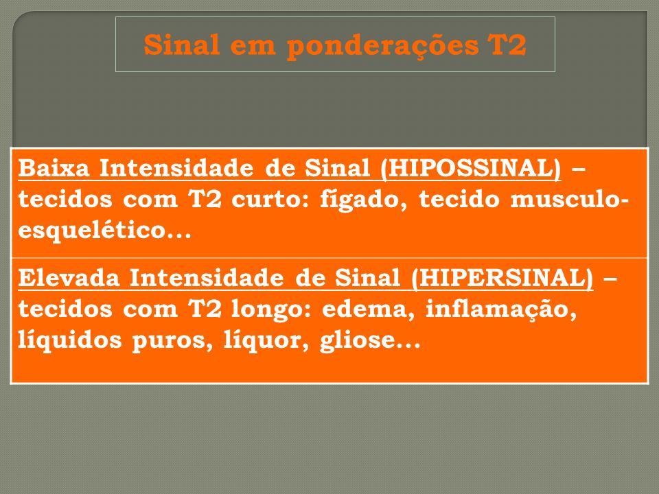 Sinal em ponderações T2 Baixa Intensidade de Sinal (HIPOSSINAL) – tecidos com T2 curto: fígado, tecido musculo- esquelético... Elevada Intensidade de