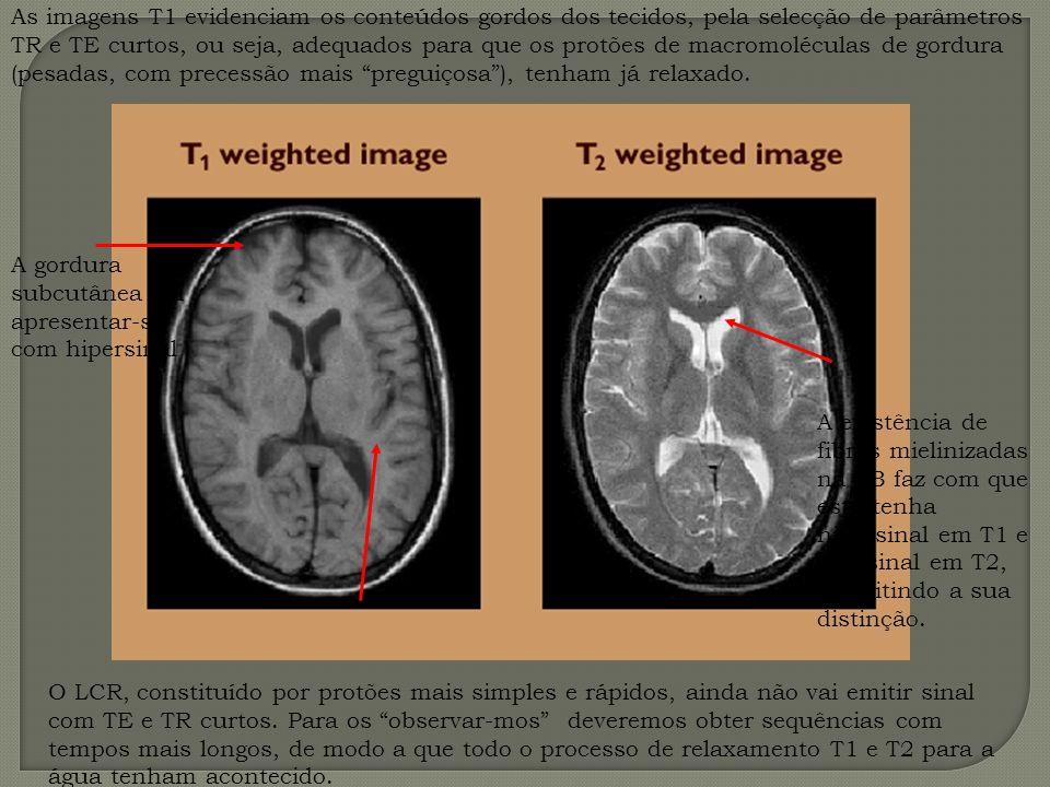 As imagens T1 evidenciam os conteúdos gordos dos tecidos, pela selecção de parâmetros TR e TE curtos, ou seja, adequados para que os protões de macrom