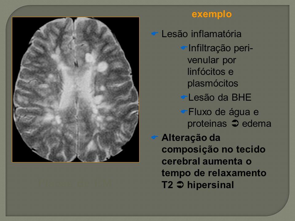Placas de EM Lesão inflamatória Infiltração peri- venular por linfócitos e plasmócitos Lesão da BHE Fluxo de água e proteinas edema Alteração da compo