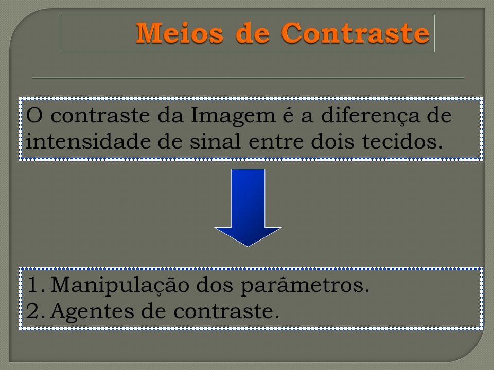 O contraste da Imagem é a diferença de intensidade de sinal entre dois tecidos. 1.Manipulação dos parâmetros. 2.Agentes de contraste.