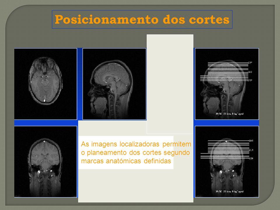 As imagens localizadoras permitem o planeamento dos cortes segundo marcas anatómicas definidas Posicionamento dos cortes