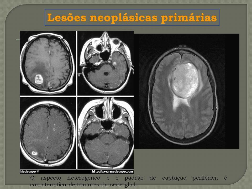 O aspecto heterogéneo e o padrão de captação periférica é característico de tumores da série glial. Lesões neoplásicas primárias
