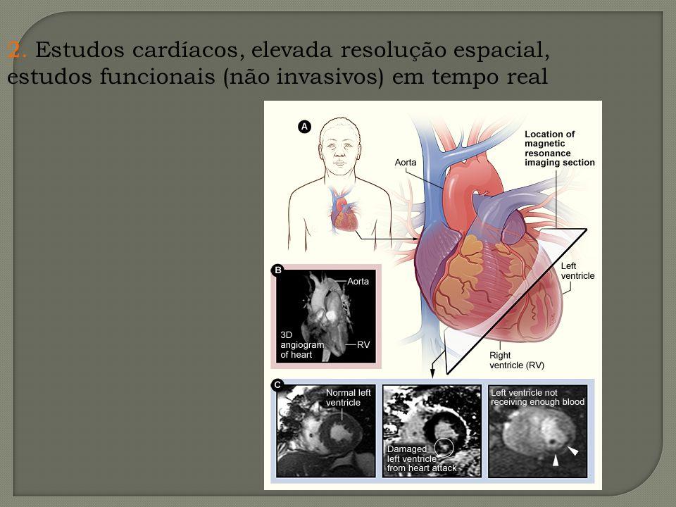 2. Estudos cardíacos, elevada resolução espacial, estudos funcionais (não invasivos) em tempo real
