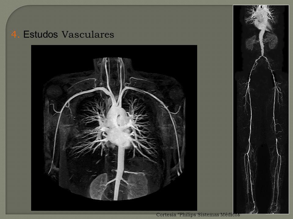4. Estudos Vasculares Cortesia Philips Sistemas Médicos
