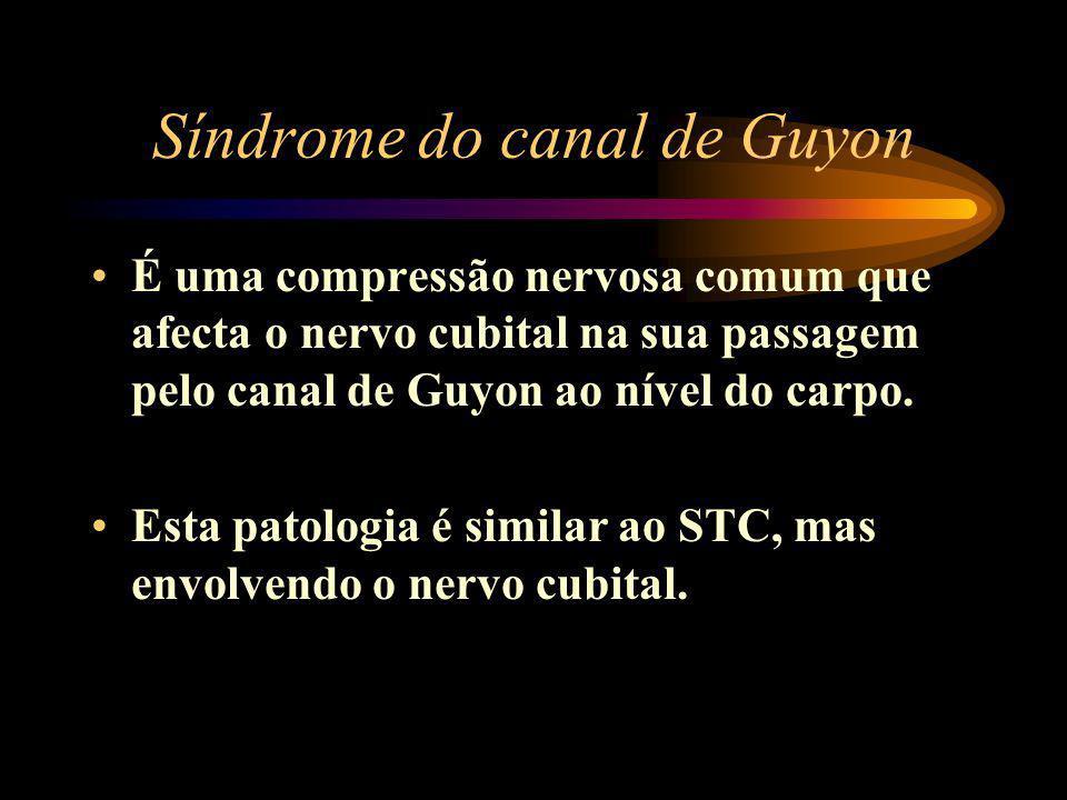 Síndrome do canal de Guyon É uma compressão nervosa comum que afecta o nervo cubital na sua passagem pelo canal de Guyon ao nível do carpo. Esta patol