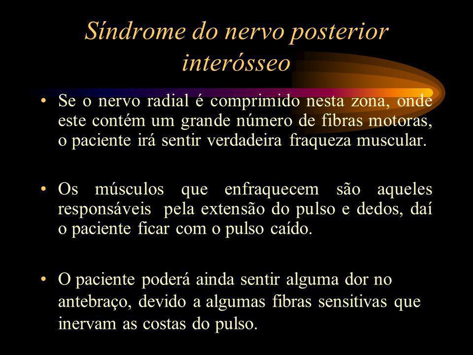 Síndrome do nervo posterior interósseo Se o nervo radial é comprimido nesta zona, onde este contém um grande número de fibras motoras, o paciente irá