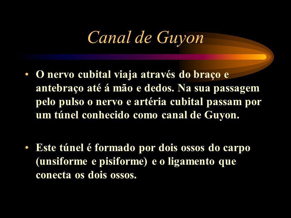 Canal de Guyon O nervo cubital viaja através do braço e antebraço até á mão e dedos. Na sua passagem pelo pulso o nervo e artéria cubital passam por u