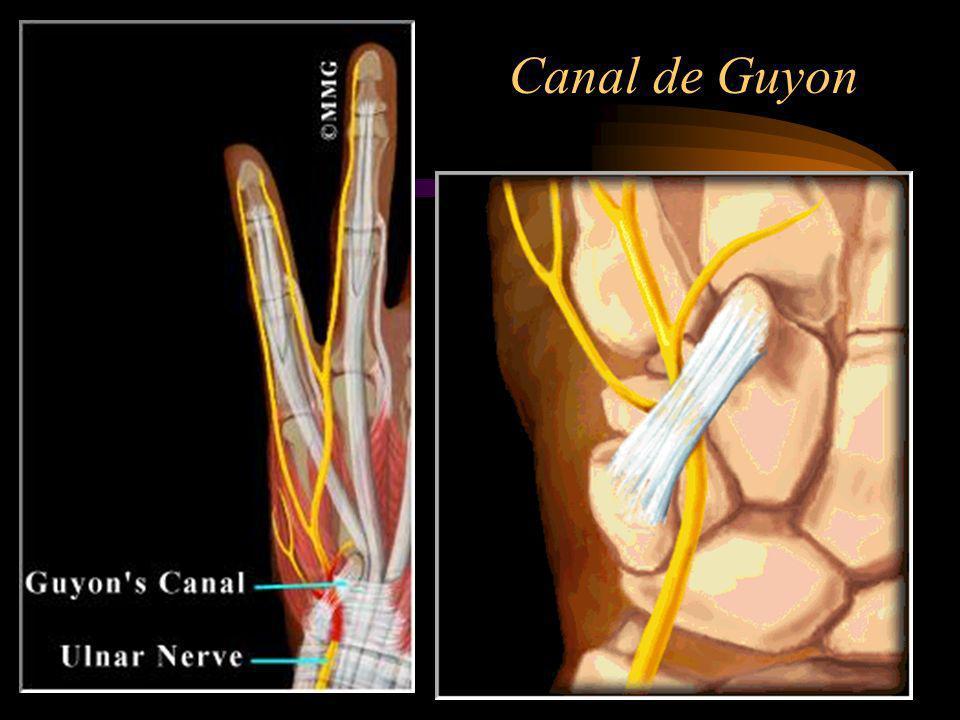 Causas Esforços excessivos do pulso, especialmente os que requerem movimentos de flexão e abdução do pulso.