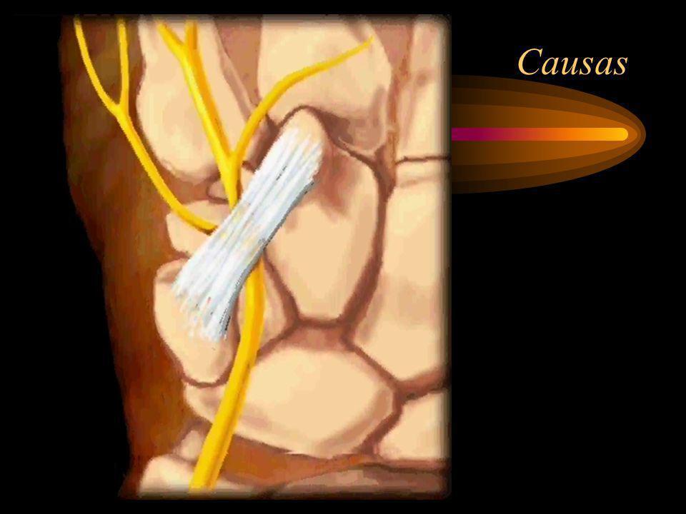 Sintomas Parestesias e disestesias no 5º e metade do 4º dedo, mais acentuadas durante a noite e manhã.